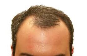Cara Menumbuhkan Rambut Di Jidat Botak Bagian Depan Jagad Id