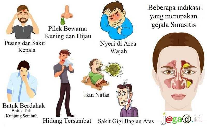Gejala Sinusitis , Pengobatan, Pencegahan, Bahaya Sinusitis Akut