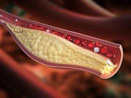 Pengertian Kolesterol Adalah Arti Penyakit Baik Jahat Tanda Gejala, Faktor Resiko dan Penanganan