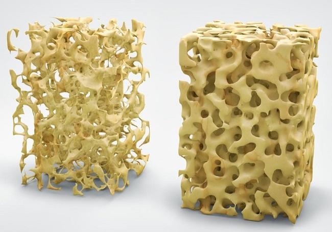 Pengertian Osteoporosis Adalah Penyakit Definisi Gambar Contoh Gejala, Penyebab, Faktor Resiko, Diagnosis dan Pengobatan