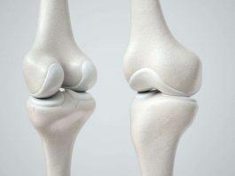 Pengertian Tulang Rawan Adalah Jaringan, Jenis, Ciri Ciri dan Fungsi